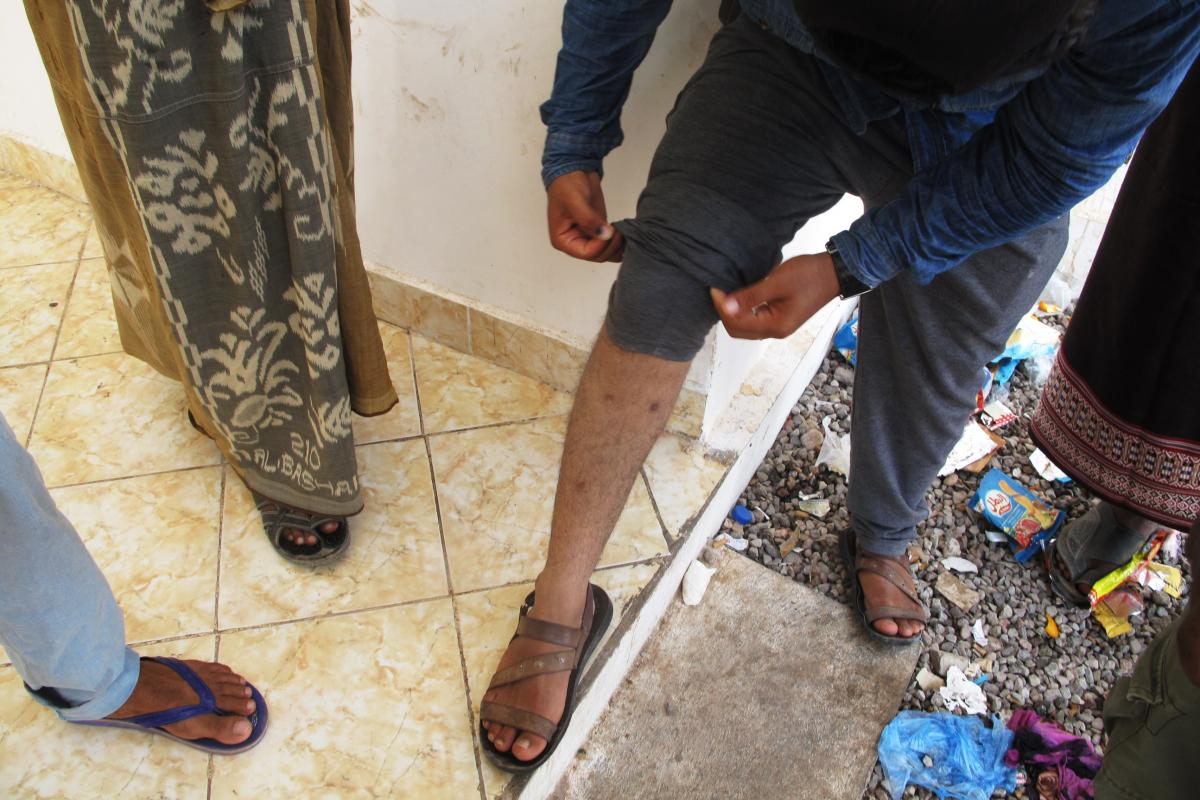 A Yemeni man shows a bullet wound he suffered as he was fleeing his homeland by boat.
