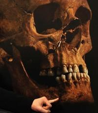 An enlarged image of the skull identified as that of King Richard III. Jo Appleby, a lecturer in human bioarchaeology at the University of Leicester, is pointing to a detail.