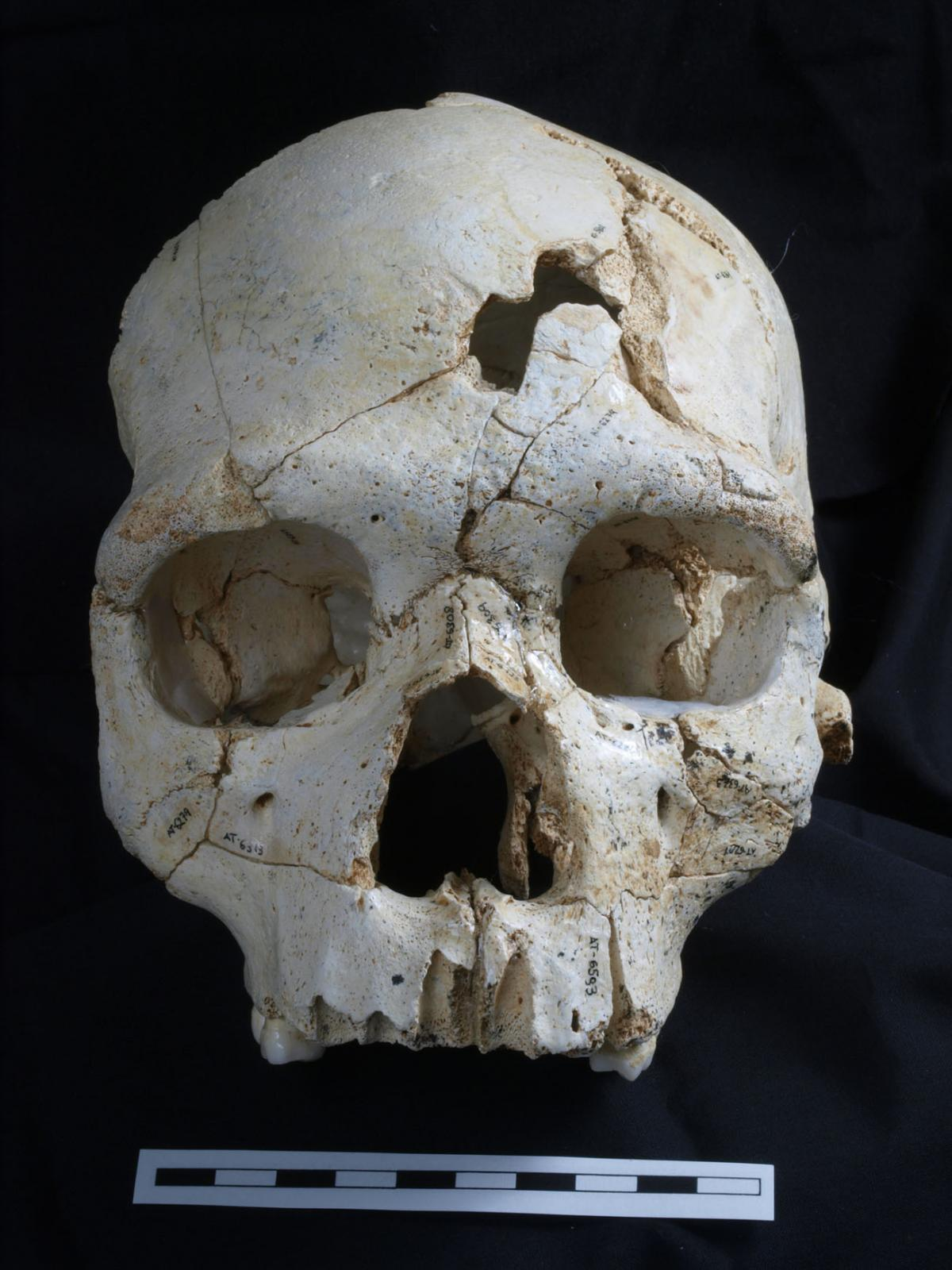 A team of scientists say they've discovered evidence of a 435,000 year old murder, based on evidence from the injuries on this skull.