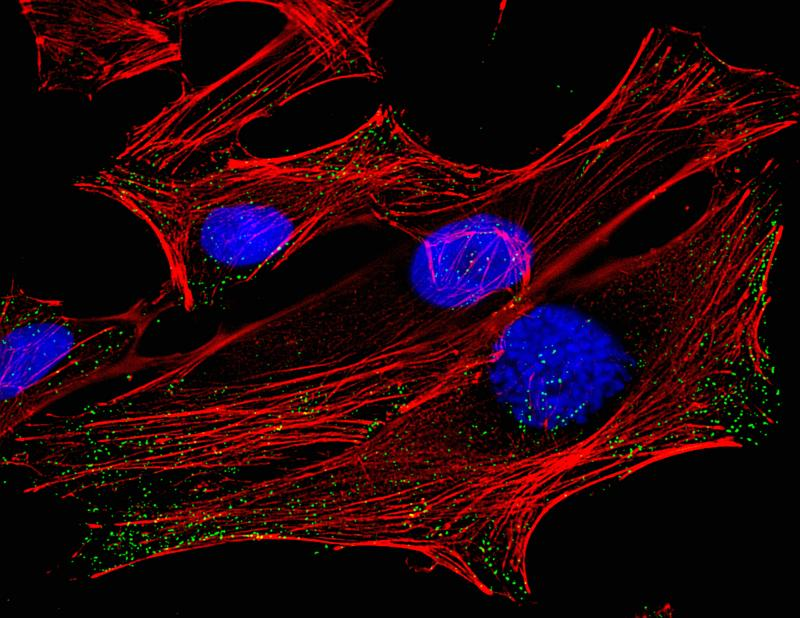 A micrograph of HeLa cells, derived from cervical cancer cells taken from Henrietta Lacks.