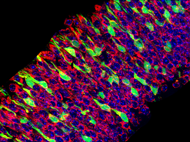 This image depicts a tissue section through a mouse embryonic brain in which migrating neurons are depicted in green. The remaining cells of the brain are composed of neurons and neural stem cells (red and blue).