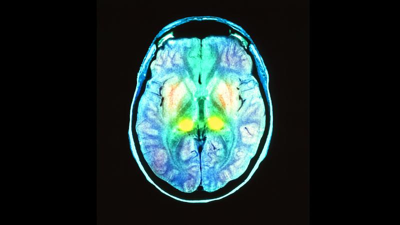 Colored brain scan of a 17-year-old boy with mad cow disease. The bright yellow spots are a sign that the thalamus is damaged by diseased proteins.