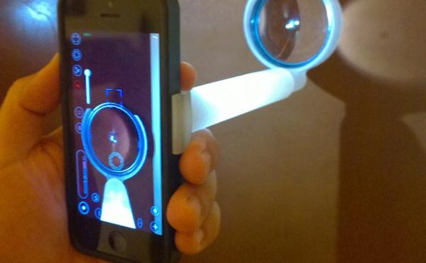 Smartphones can now capture high-quality images of the front and back of an eye.