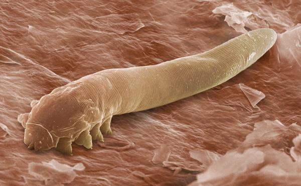 The harmless mite Demodex folliculorum, seen here in an electron microscope image, lives in the follicles of eyelashes.