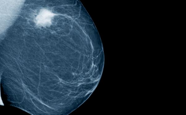 Lateral mammogram showing a tumor