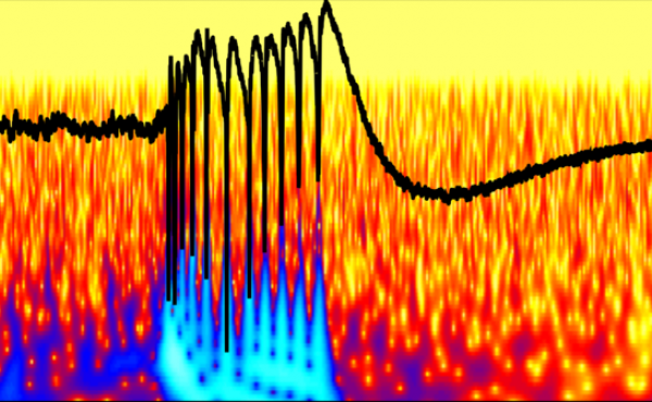A peak of abnormal epileptic brain activity in a brain's hippocampus