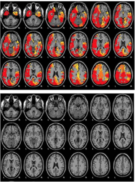 """Brain scans from Emerald show what it claims to be before (top) and after (bottom) images of a woman's brain following NAD treatment. The images appear in an Emerald brochure, including text that says, """"The brain is more calm after 12 days of NAD+ Amino A"""
