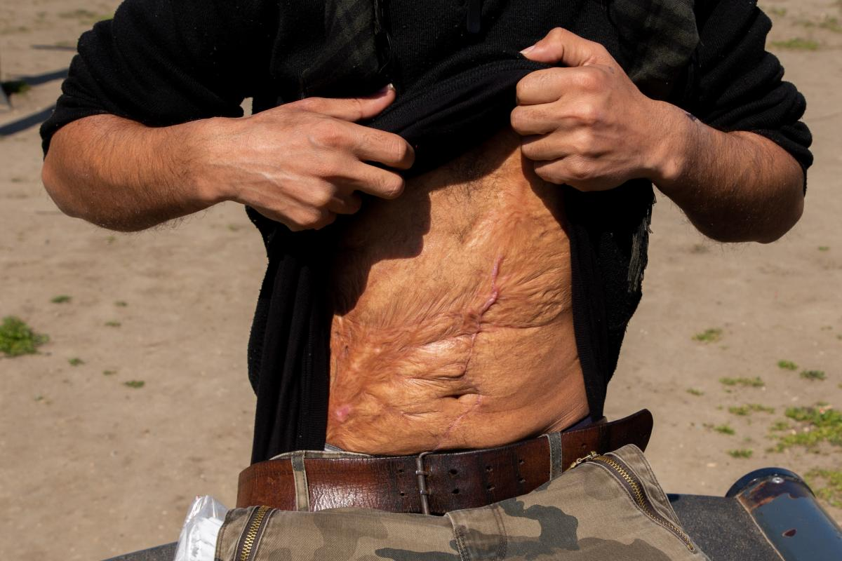 Hatem al-Hamad, 28, from Aleppo, Syria, and staying  in Serbia's Krnjaca asylum center, shows his scars. He says the main injury came from a bomb blast in the Syrian war. Additional scars are from surgery he underwent in Belgrade in February. He says Hung