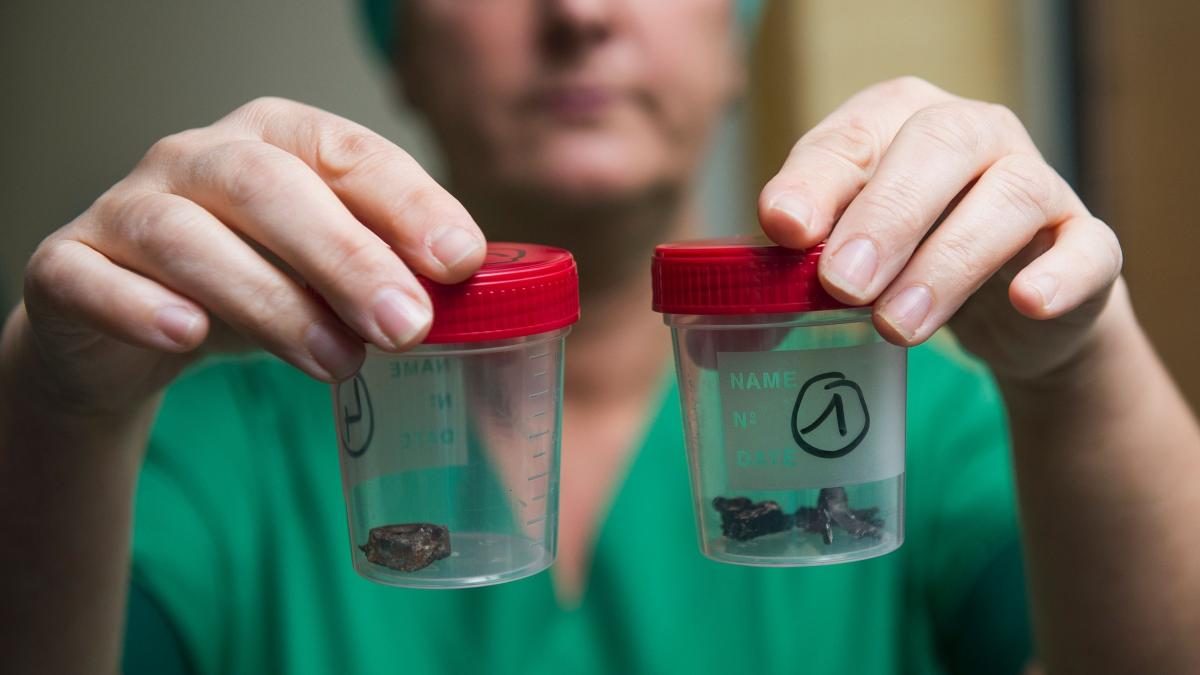 A nurse at the Campus Gasthuisberg UZ hospital in Leuven, outside Brussels, shows fragments of iron shrapnel from a nail bomb on Thursday, two days after a bomb attack hit Brussels' airport and the Maelbeek subway station.