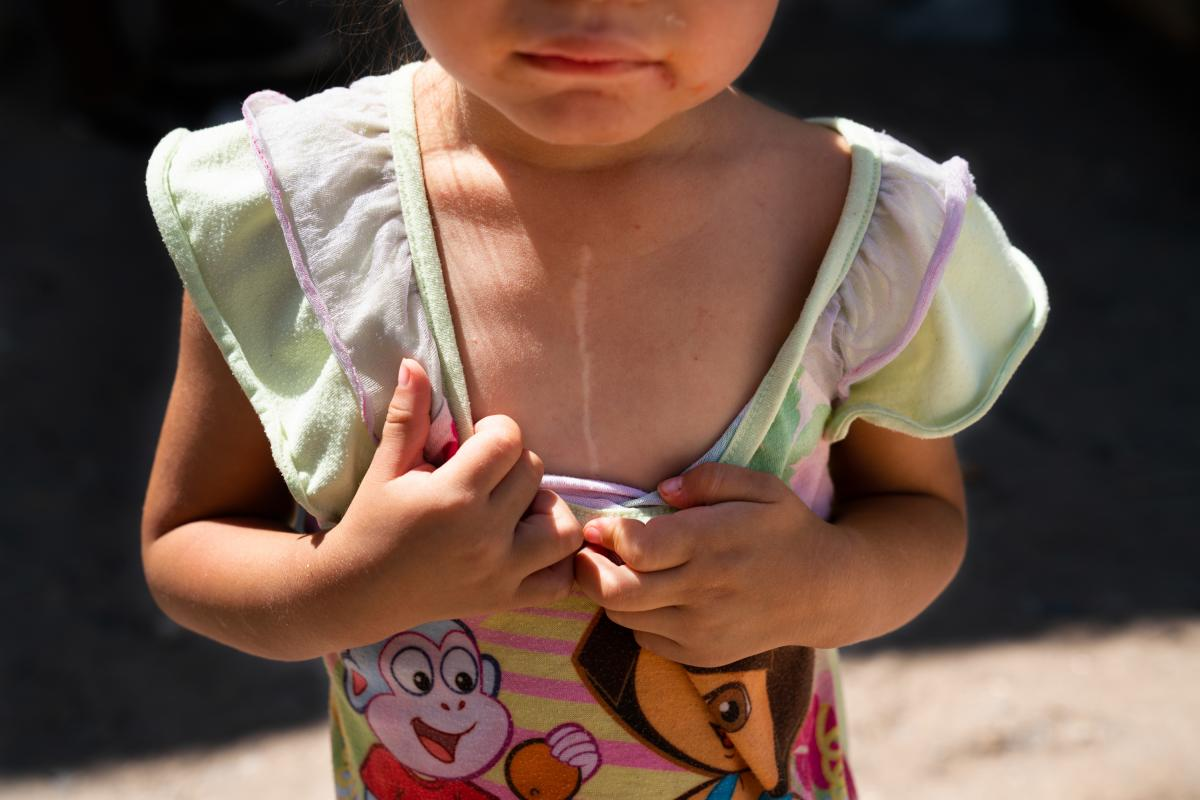 Tania and Joseph's 3-year-old daughter has a scar on her chest from heart surgery. The family has lived in shelters for months while waiting for their time in court.