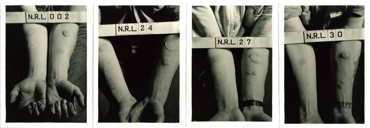 These photographs, taken at the Naval Research Laboratory in Washington, D.C., show the forearms of several test subjects after they were exposed to nitrogen mustard and lewisite agents during World War II.