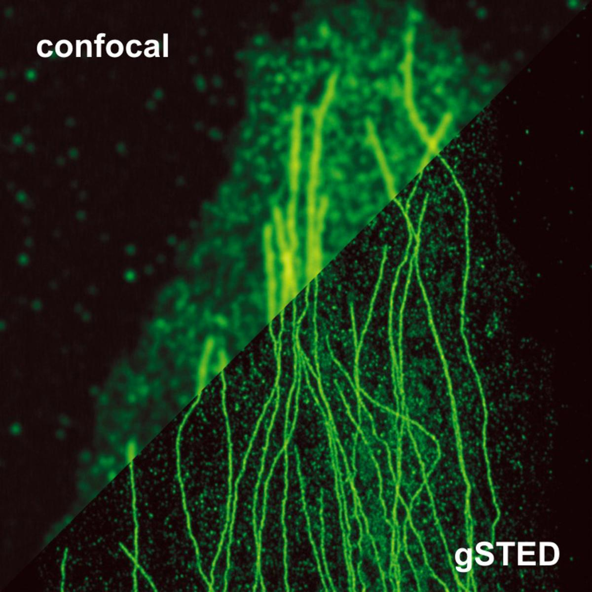 The new microscopy technique (lower right) brings into focus details of cell structures never seen before with light.