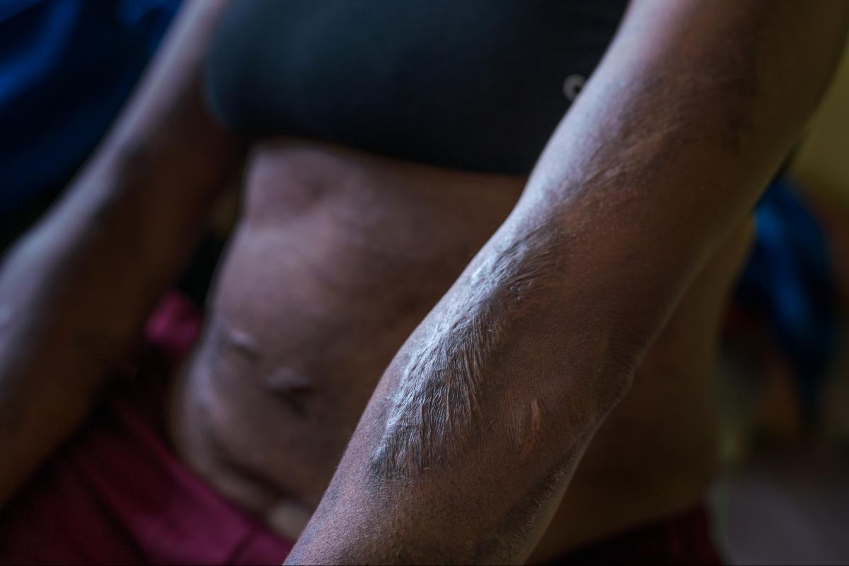 Margaret Kambao shows the scars from burns she suffered in 2015, when she was accused of sorcery and tortured by her community in Enga Province.