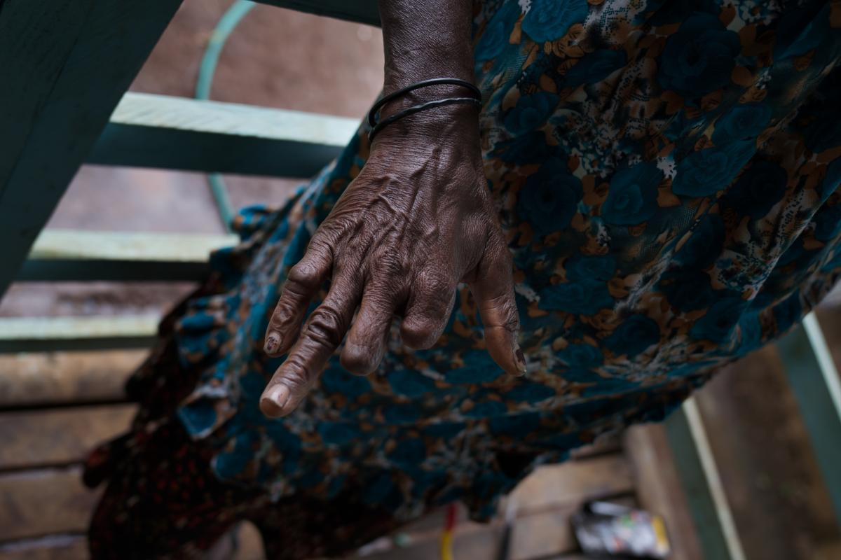 After being accused of sorcery, a woman's fingers were mutilated. Now the limited use of her hands makes it difficult to do work like laundry or sewing, so she sells betel nut on the street.