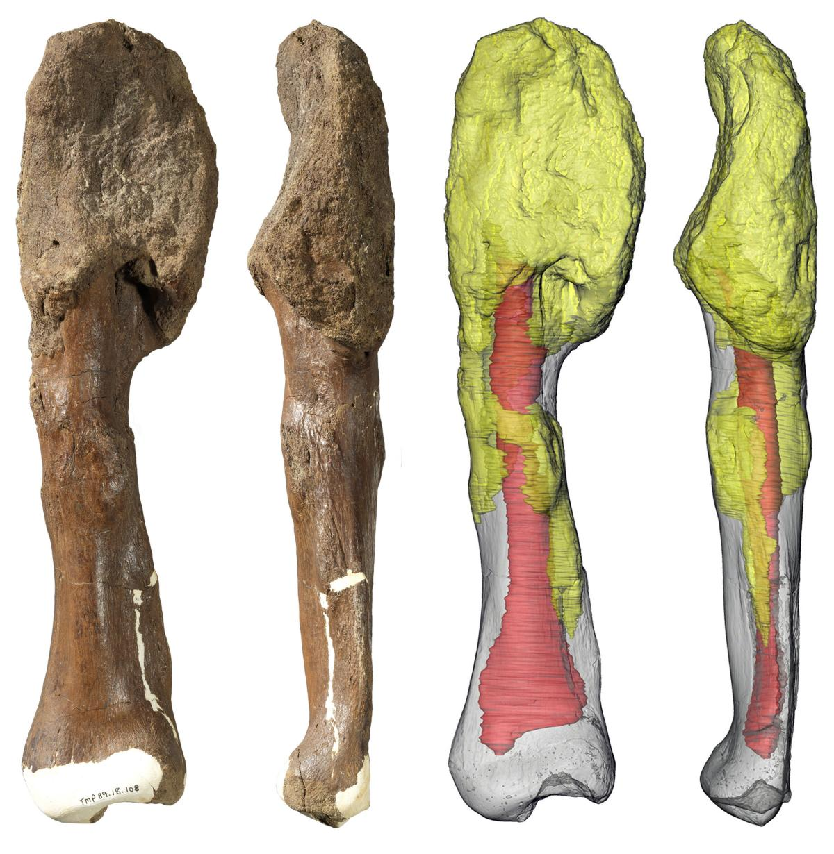 Two views of the Centrosaurus apertus shin bone (fibula) with malignant bone cancer (osteosarcoma). The extensive invasion of the cancer throughout the bone (yellow) suggests that it persisted for a considerable period of the dinosaur's life and may have