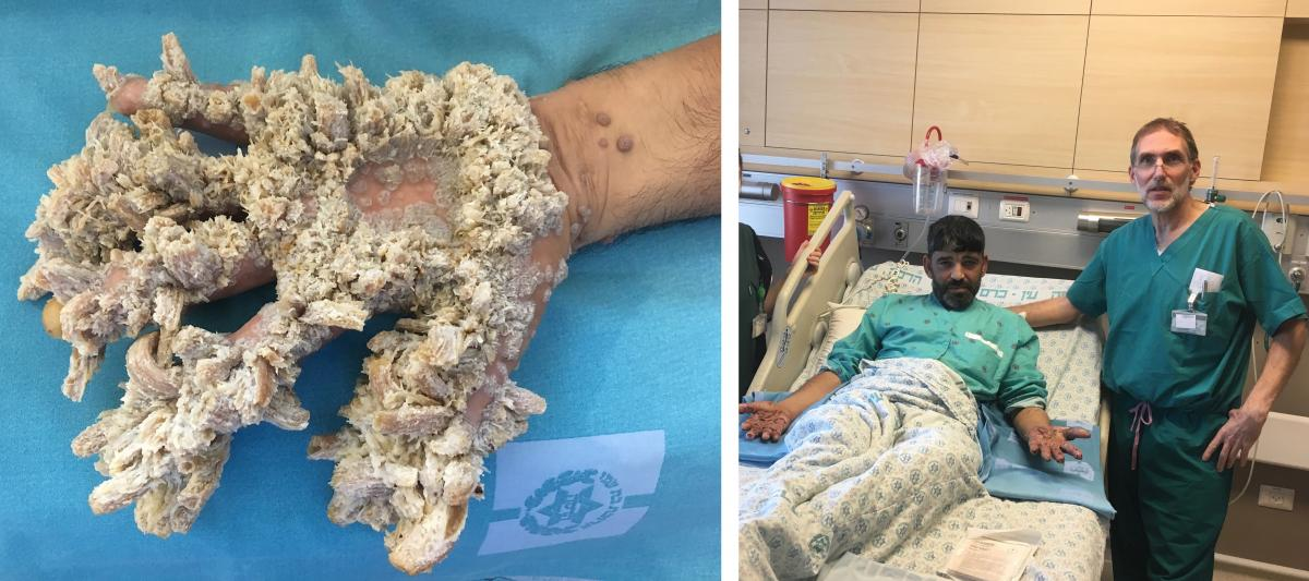 """The growths on Mahmoud Taluli's hands were the result of a severe case of a rare condition called epidermodysplasia verruciformis — sometimes referred to as """"tree man"""" syndrome because the tumors can resemble wood or bark. At right: Taluli after his ope"""