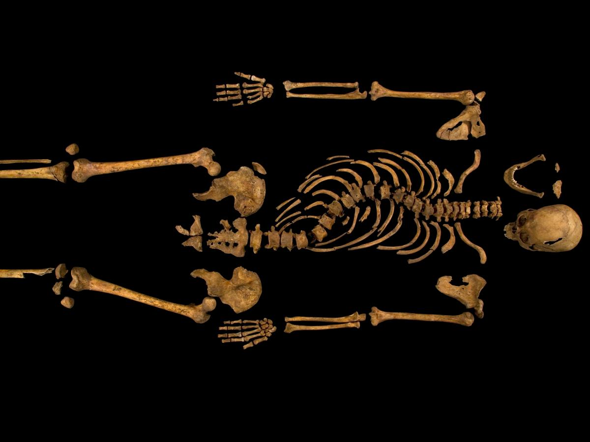 A skeleton with a cleaved skull and a curved spine entombed under a parking lot is that of Richard III, scientific tests confirmed.