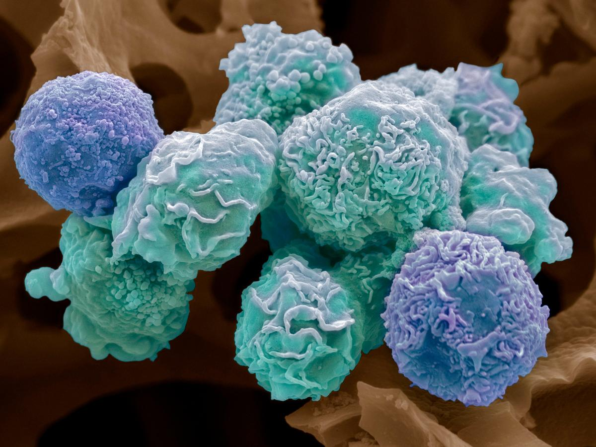 Colored scanning electron micrograph (SEM) of cultured cancer cells from a human cervix, showing numerous blebs (lumps) and microvilli (hair-like structures) characteristic of cancer cells. Cancer of the cervix (the neck of the uterus) is one of the most