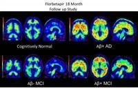 Brain scans using Amyvid dye to highlight beta-amyloid plaques in the brain. Clockwise from top left: a cognitively normal subject; an amyloid-positive patient with Alzheimer's disease; a patient with mild cognitive impairment who progressed to dementia d