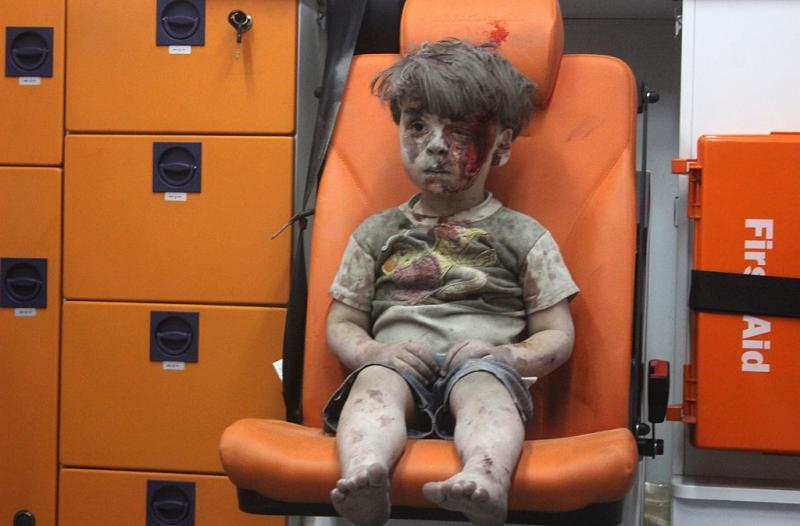 5-year-old wounded Syrian child Omran Daqneesh sits alone in the back of the ambulance after he was injured during air strikes targeting Aleppo on Wednesday.