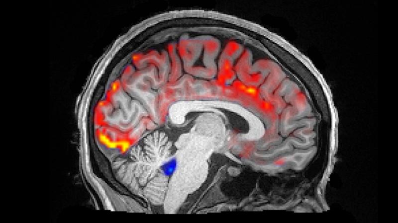 During deep sleep, waves of cerebrospinal fluid (blue) coincide with temporary decreases in blood flow (red). Less blood in the brain means more room for the fluid to carry away toxins, including those associated with Alzheimer's disease.