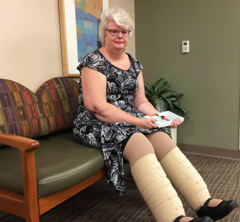 Marlene Simpson of Sacramento, Calif., wears compression bandages daily to help reduce the swelling in her legs. She is getting fitted for compression bandages for her arms to prevent swelling there.