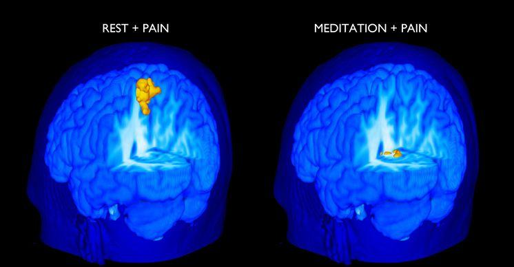 This scan illustrates activity in the primary somatosensory cortex. This area is highly active during pain and rest. But its activity level is far lower during meditation and pain.