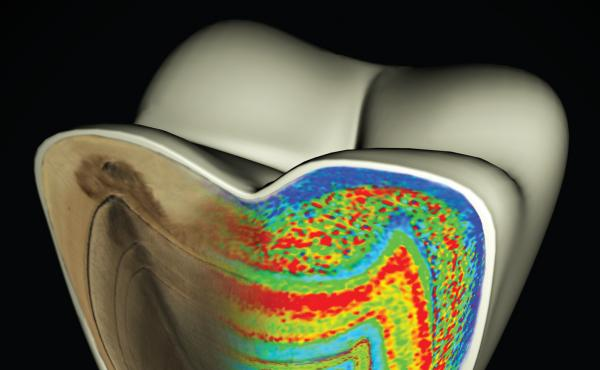 This model of a molar shows color-coded barium banding patterns that reveal weaning age.