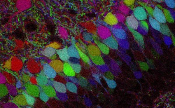 More than 100 years ago, Golgi staining on nerve cells opened the gates to modern neuroscience. Scientists recently developed the Technicolor version of Golgi staining, Brainbow, allowing more detailed reconstructions of brain circuits.