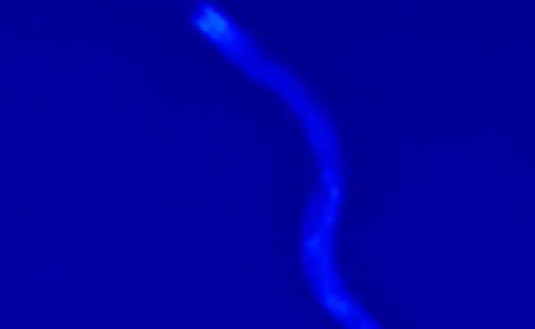 A nematode worm glows as it nears death in this screenshot from a YouTube video showing the work of researchers in London.