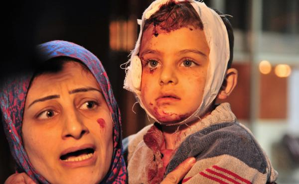 A woman carries a child injured in a triple blast a suburb of the Syrian capital Damascus on Feb. 21.
