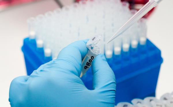 A medical researcher prepares tests for various diseases including Zika.