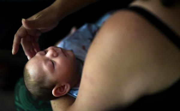 Puerto Rico resident Michelle Flandez caresses her two-month-old son Inti Perez, diagnosed with microcephaly linked to the mosquito-borne Zika virus. The U.S. Centers for Disease Control and Prevention says the Zika virus continues to impact a small numbe