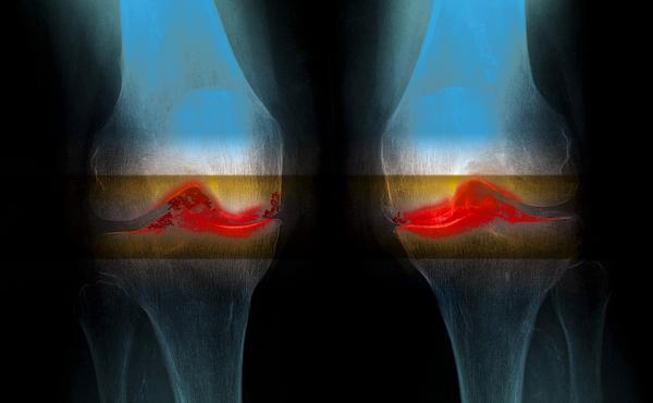 Arthritis is a joint disease that can cause cartilage destruction and erosion of the bone, as well as tendon inflammation and rupture. Affected areas are highlighted in red in this enhanced X-ray.