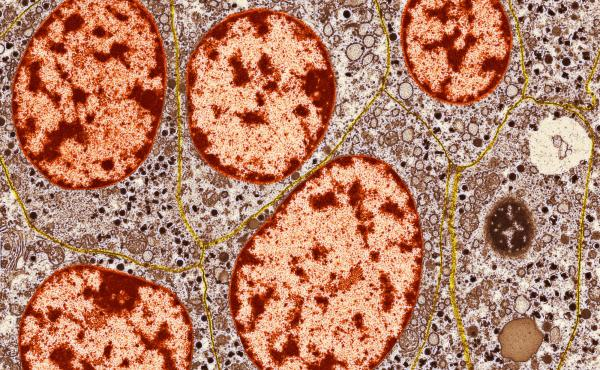 Patients with Type-1 diabetes don't have enough healthy islets of Langerhans cells — hormone-secreting cells of the pancreas. Granules (orange in this image) inside these cells release insulin and other substances into the blood.