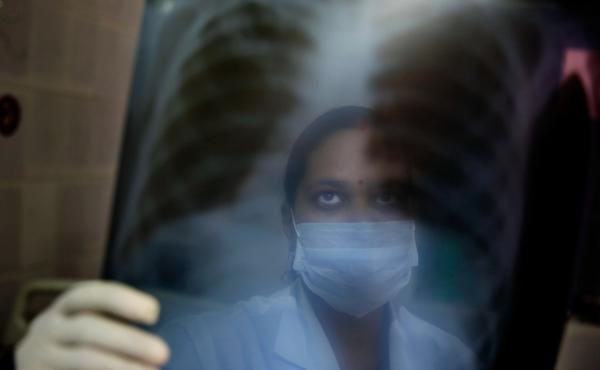 A nurse in India looks at x-ray results to see if the patient has tuberculosis.