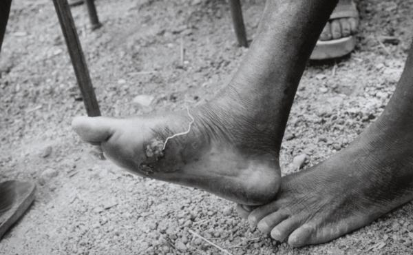 The white, threadlike Guinea worm emerges from an infected foot.