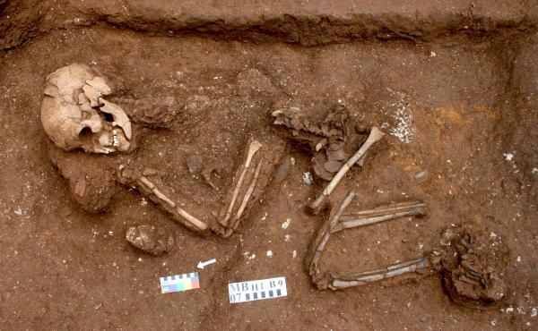 """A skeleton found in Vietnam, dubbed Burial 9, was discovered in 2007. A closer look at his bones led to a diagnosis of rare genetic syndrome that often leads to paralysis. """"From the bones alone, we can say this person lived with a disease that required he"""