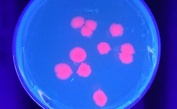 Glowing bacteria is part of a project on the open-source laboratory Arcturus BioCloud.