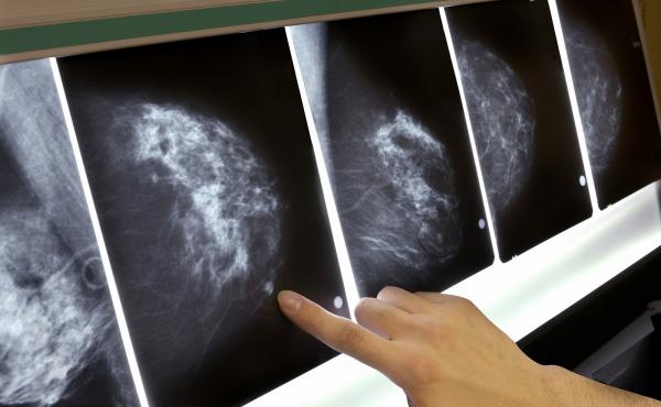In a study of 1.3 million women, ages 40 to 74, having a false positive on a screening mammogram was associated with a slightly increased chance that the woman would eventually develop breast cancer. The extra risk seemed to be independent of the density