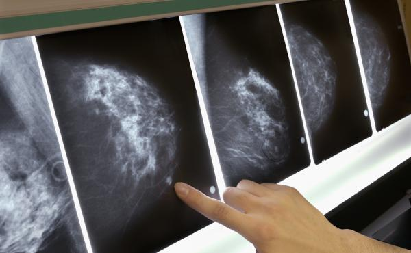The out-of-pocket expense of mammograms, MRIs and other tests and treatments can be several thousand dollars each year when you have a high-deductible health policy.