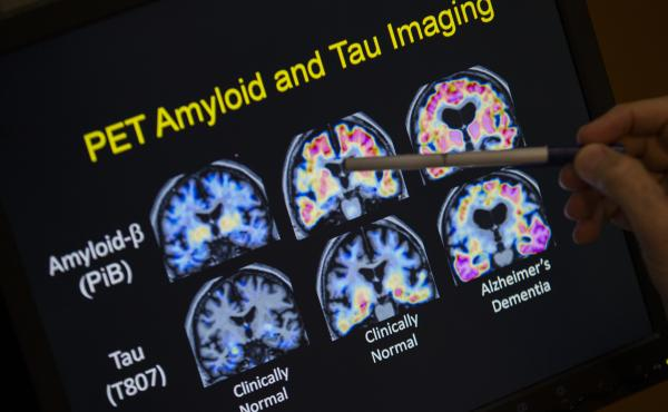 In a May 19, 2015 file photo, R. Scott Turner, Professor of Neurology and Director of the Memory Disorder Center at Georgetown University Hospital, points to PET scan results that are part of a study on Alzheimer's disease at Georgetown University Hospita