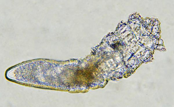 Just about every adult human alive has a population of Demodex mites living on them.