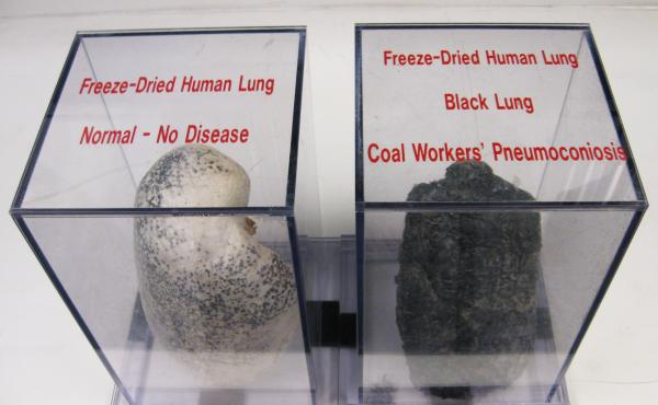 A display case at NIOSH shows a normal lung and a diseased black lung, caused by inhaling coal dust and other harmful particles while coal mining.