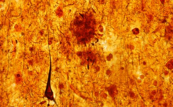 This light micrograph from the brain of someone who died with Alzheimer's disease shows the plaques and neurofibrillary tangles that are typical of the disease. A glitch that prevents healthy cell structures from transitioning from one phase to the next m