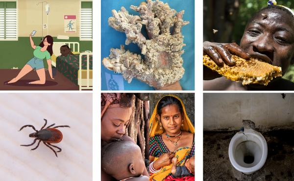"Clockwise from top left: Bad selfie; ""tree man"" disease; Deer tick; mothers from Namibia's Himba tribe and from Amber, India; toilet; and Hamza man eating honeycomb."