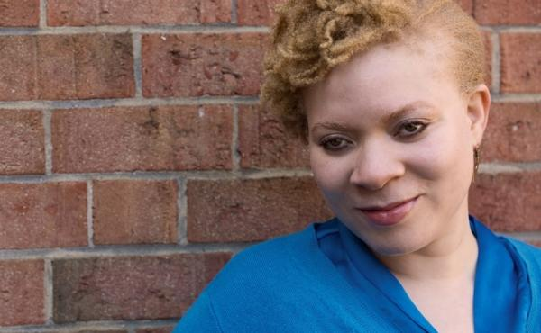 Brandi Green negotiates the world as an African-American woman with albinism.