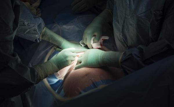 Surgeons perform a cesarean section. A new report raises concerns about rising rates of this procedure around the world, from Brazil to China.
