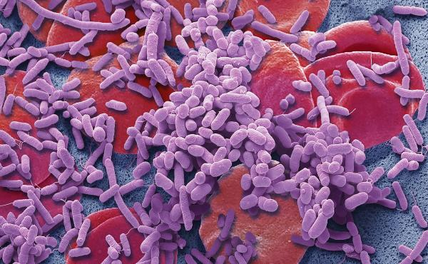 Bacteria (purple) in the bloodstream can trigger sepsis, a life-threatening illness.