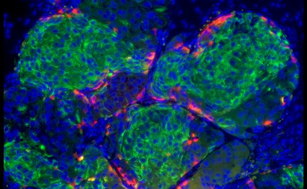 Insulin is produced by the green cells that are in clusters about the same size as the islets in the human pancreas. The red cells are producing another metabolic hormone, glucagon, that prevents low blood sugar.